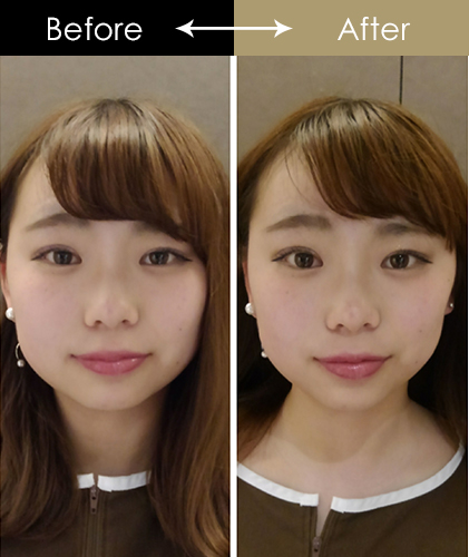 効果 美容 鍼 美容鍼は顔のリフトアップ効果がない?!鍼灸師が裏事情を暴露する!